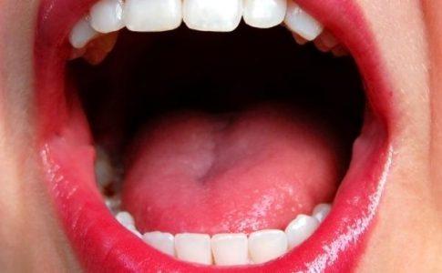 mengatasi-bau-mulut